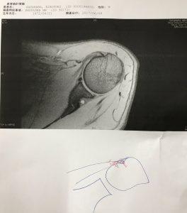 左肩の腱板が断裂しているレントゲン