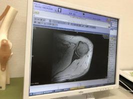 福井総合クリニックの山門先生に診ていただいた左肩のレントゲン